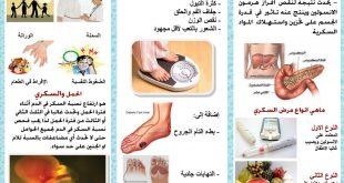 اعراض ارتفاع السكر في الدم , ما هي اسباب ارتفاع السكر في الدم