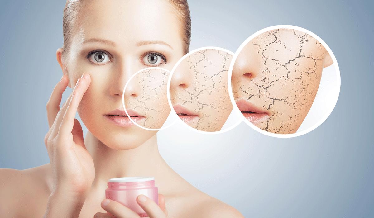 صور علاج جفاف الجسم , اسباب خشونة الجلد