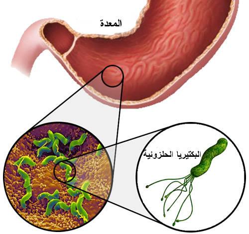 صورة اعراض الجرثومة الحلزونية , الاعراض الصحيه التي تبين الاصابه بمرض الجرثومه الحلزونيه