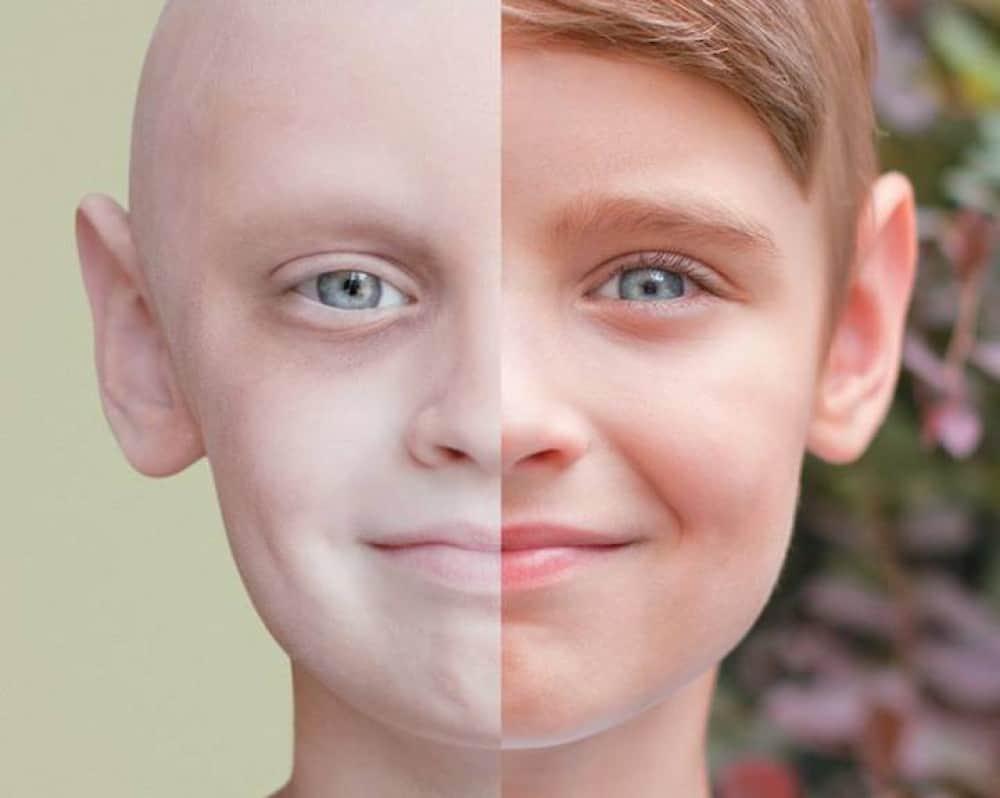 بالصور تفسير حلم الاصابة بالسرطان , ما وراء رؤيه المرض فى الحلم 2116