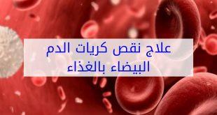 علاج نقص كريات الدم البيضاء , اعراض والتخلص من نقص الكرات البيضاء فى الدم