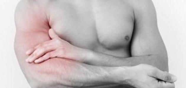 صور اسباب الام العضلات المستمر , الم العضلات الذي لا ينتهي له اسباب خفية اعرفها