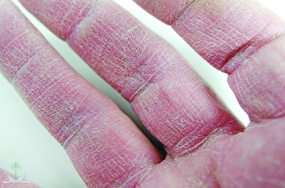 صورة علاج تقشر جلد اليدين , الحصول علي يدين ناعمة