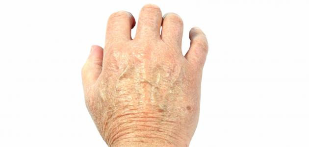 بالصور علاج تقشر جلد اليدين , الحصول علي يدين ناعمة 5235 3