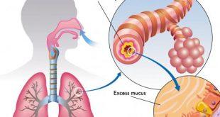 التهاب الجهاز التنفسي , علاج الضيق في النفس