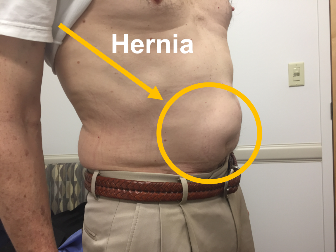 صورة اعراض فتق البطن , ما الاسباب التى تسبب فتق البطن