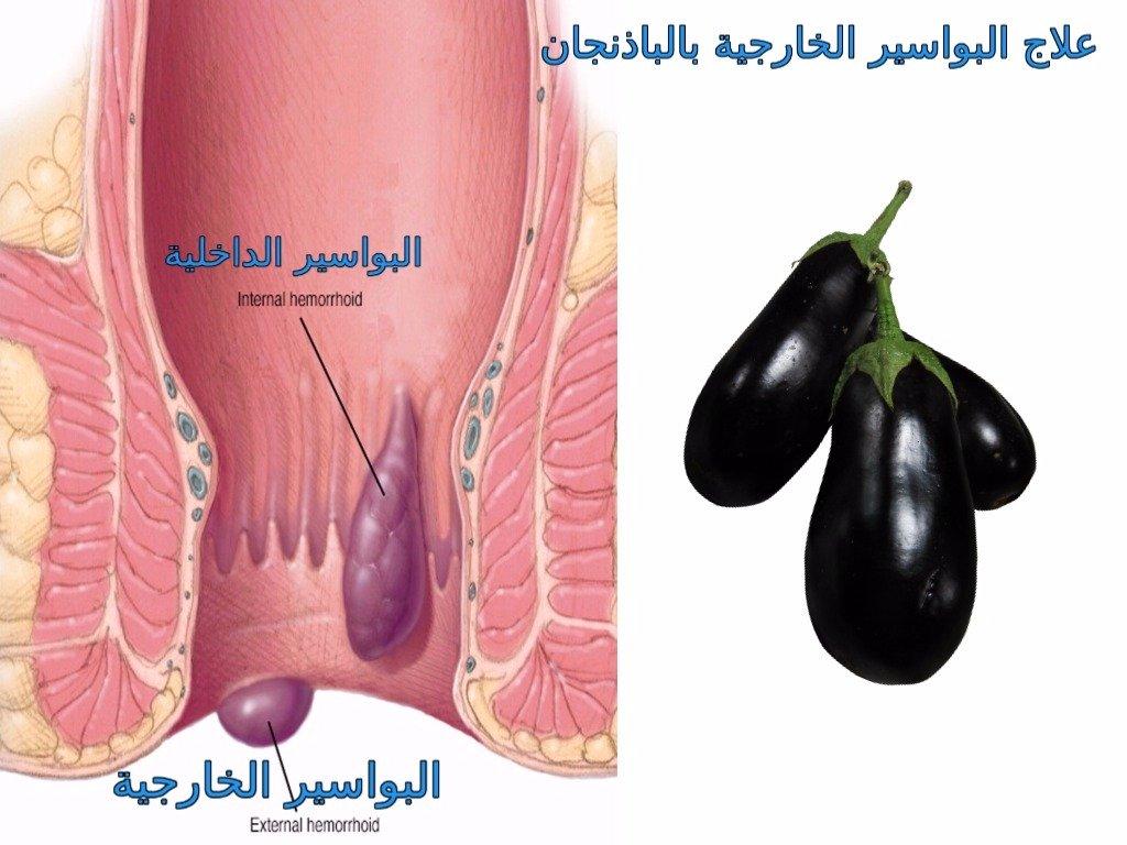 صورة مدة علاج البواسير الخارجية , الوقت الكافى لعلاج البواسير