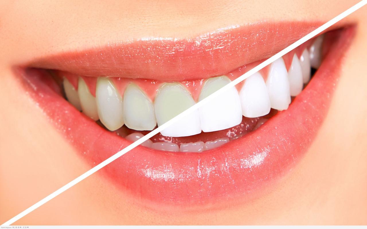 صورة التخلص من اصفرار الاسنان , وصفه خطيره لتبيض الاسنان