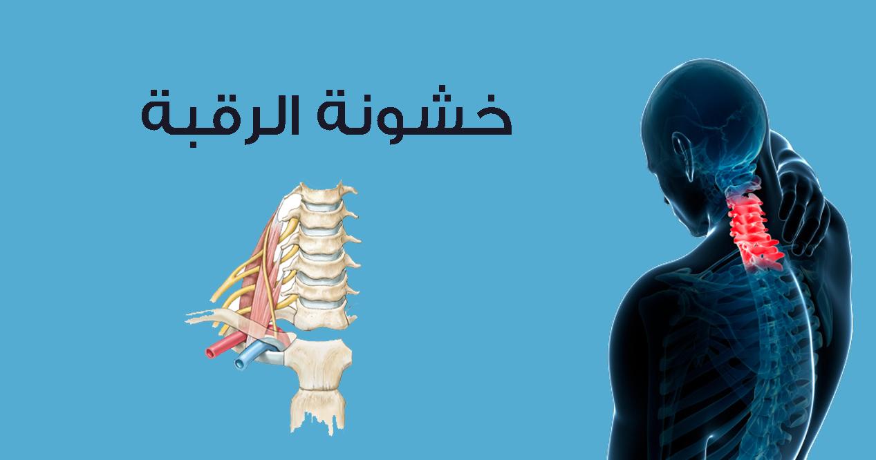 صورة اسباب خشونة الرقبه , اعراض واسباب الخشونه فى جسمك