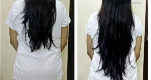 صور تجربتي مع حبوب البيوتين للشعر , منتجات سحريه لحل مشاكل الشعر