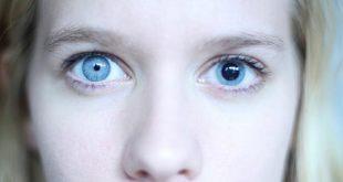 صور حدقة العين اكبر من الاخرى , تفاوت عند حدقتان العيون يعني عندي حدقه اكبر من التانيه