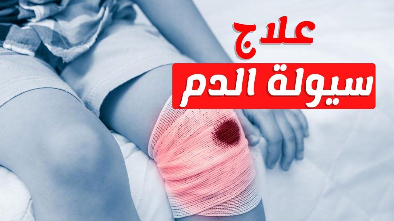 صور ماهي سيولة الدم , عرض عن امراض السيولة في الدم