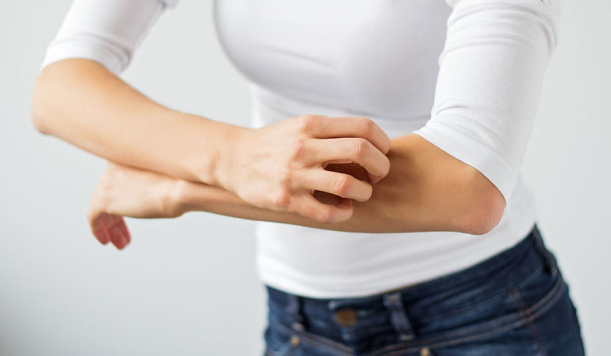 صورة علاج الطفح الجلدي بسبب الدواء , ماهو اعراض الطفح الجلدي وعلاجه