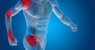 صور علاج التهاب العظام , افضل الطرق الطبيعيه للتخلص من التهاب العظام