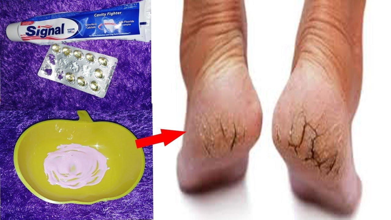 صورة علاج تشقق القدمين في يومين فقط , وصفات للتخلص من تشقق القدم