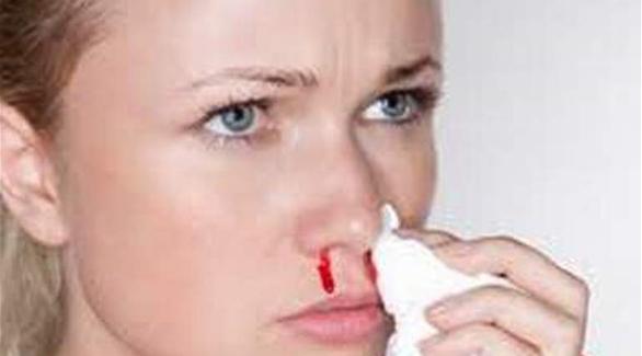 صورة اسباب نزيف الانف , ماهو العلاج المناسب لنزيف الانف وما هي اسبابه