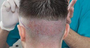 صور تكلفة زراعة الشعر في تركيا بالريال السعودي , اريد عمل زراعه شعر بتركيا كم تكلفنا بالعمله السعوديه