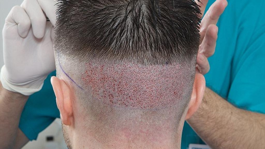 صورة تكلفة زراعة الشعر في تركيا بالريال السعودي , اريد عمل زراعه شعر بتركيا كم تكلفنا بالعمله السعوديه