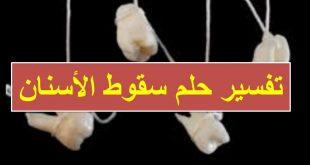 بالصور تساقط الاسنان في المنام تفسير الاحلام 5251 3 310x165