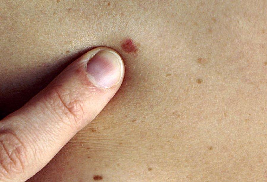 صورة اعراض سرطان الوجه , التكتلات والبثور في الوجه