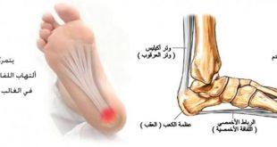 صور الام مشط القدم , اسبابه واعراضه وطرق علاجه