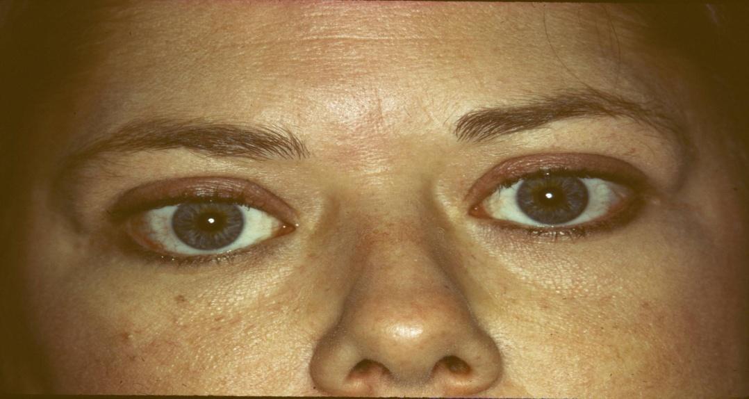 صورة اسباب جحوظ العين , ما الاسباب التي تجعل العين تجحظ الي الامام