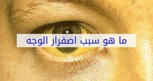صور سبب صفار الوجه , علامات تغير الوان البشره الي الاصفر