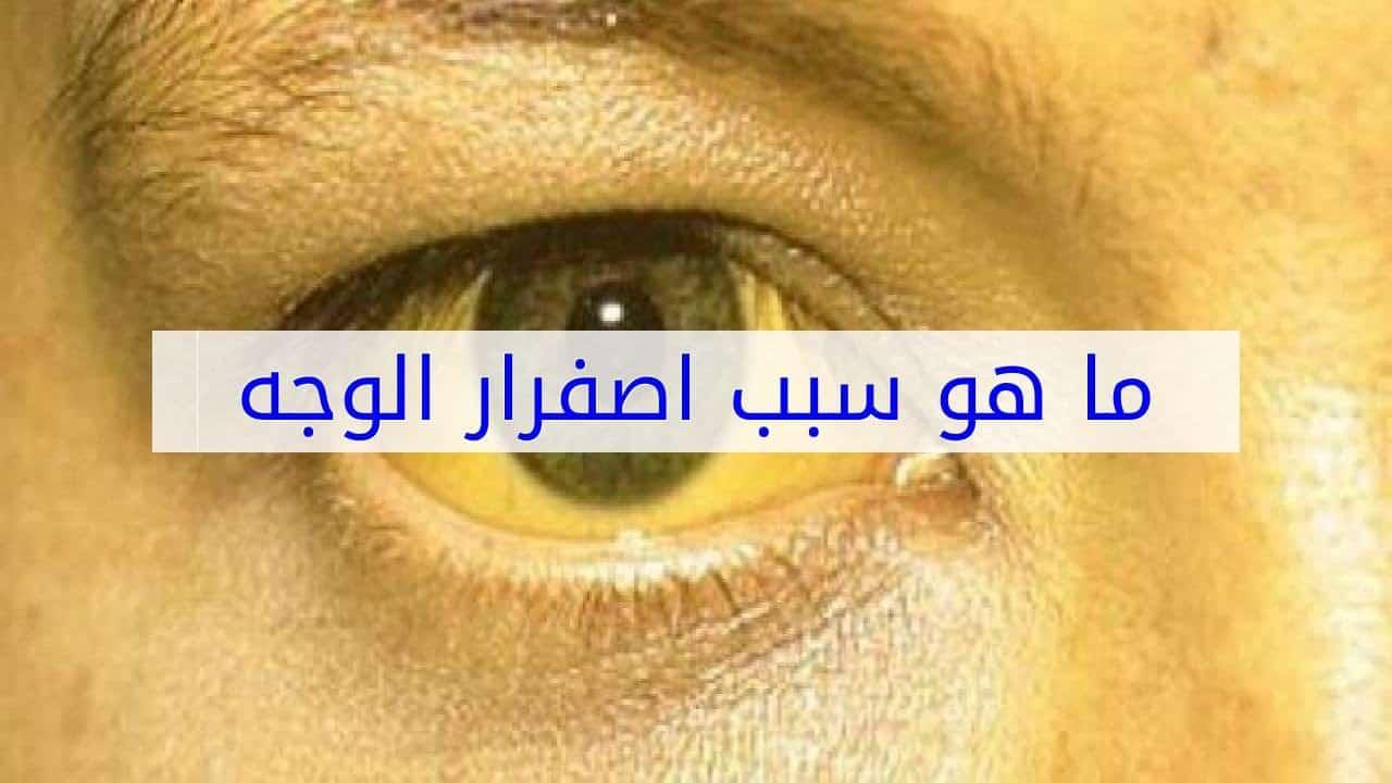 صورة سبب صفار الوجه , علامات تغير الوان البشره الي الاصفر