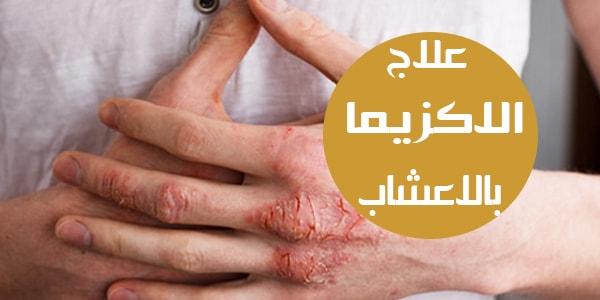 صورة علاج الاكزيما بالاعشاب , علاج الاكزيما دون تدخل الطبيب