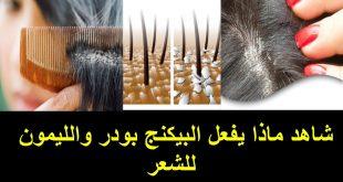 بالصور طريقة علاج قشرة الشعر , كيفية التخلص من قشرة الشعر 6258 3 310x165