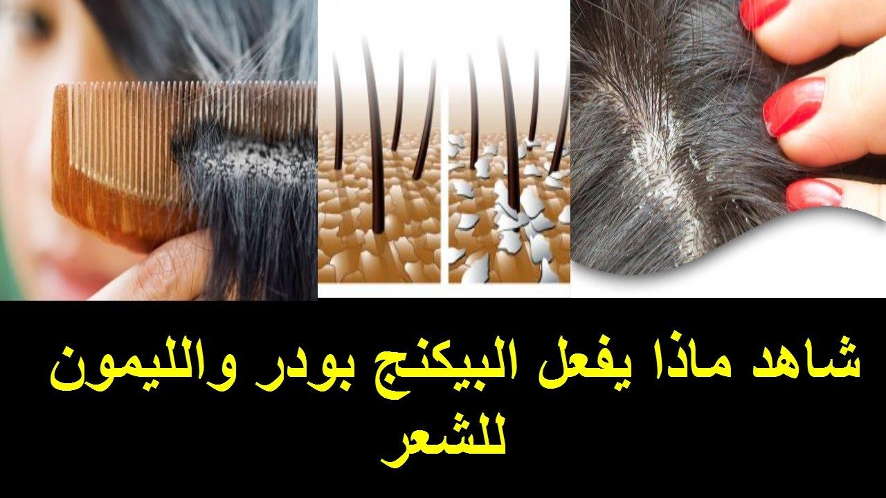 صورة طريقة علاج قشرة الشعر , كيفية التخلص من قشرة الشعر