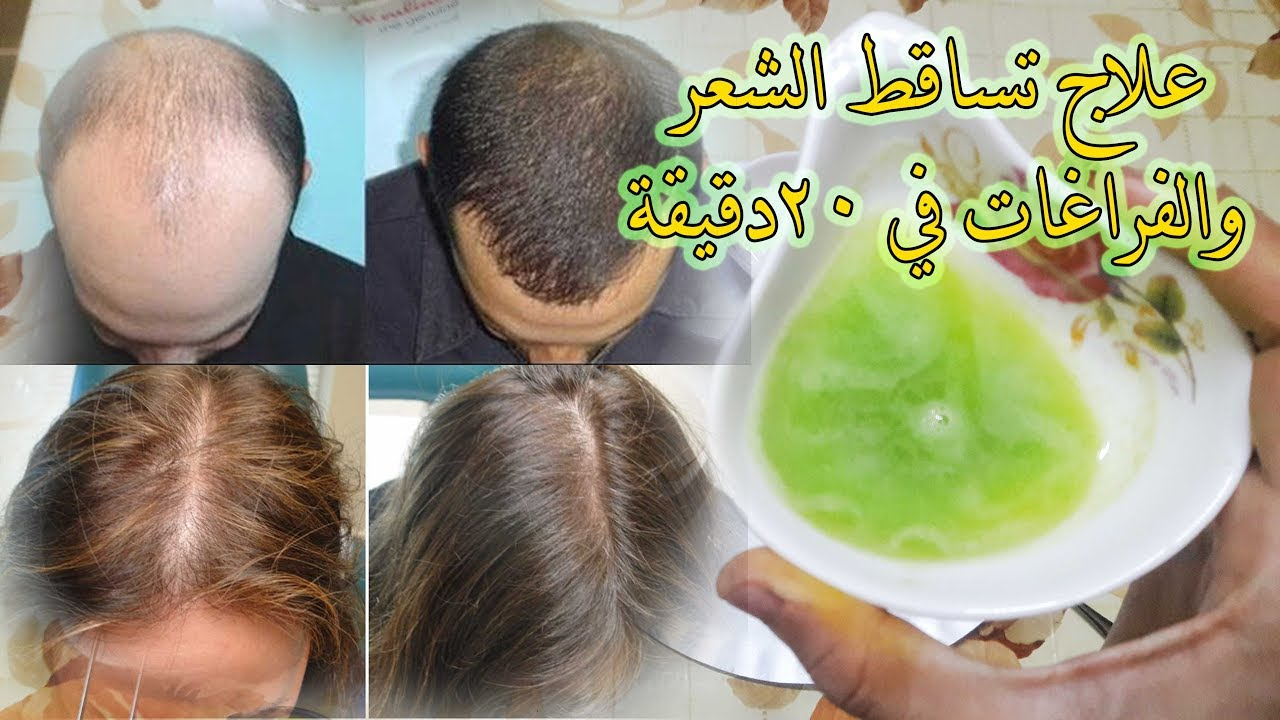 صورة وصفات لسقوط الشعر , علاج تساقط الشعر