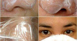 صور كيفية ازالة الرؤوس السوداء من الانف , القضاء علي البثور السوداء في الوجه