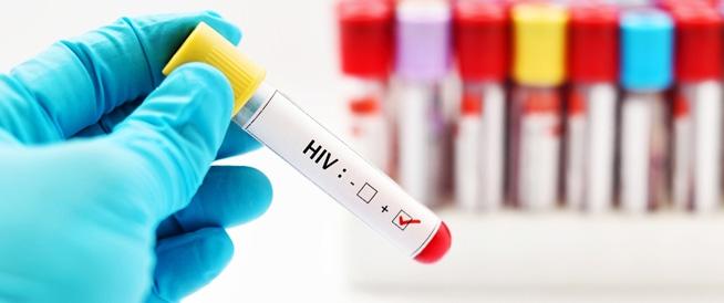 صور اعراض الايدز الاكيده , اعراض اول مره اعرفها