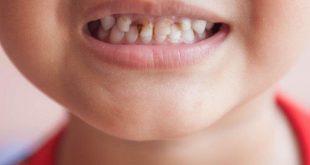 صور تسوس الاسنان للاطفال , اسباب اصابة الاطفال بتسوس الاسنان