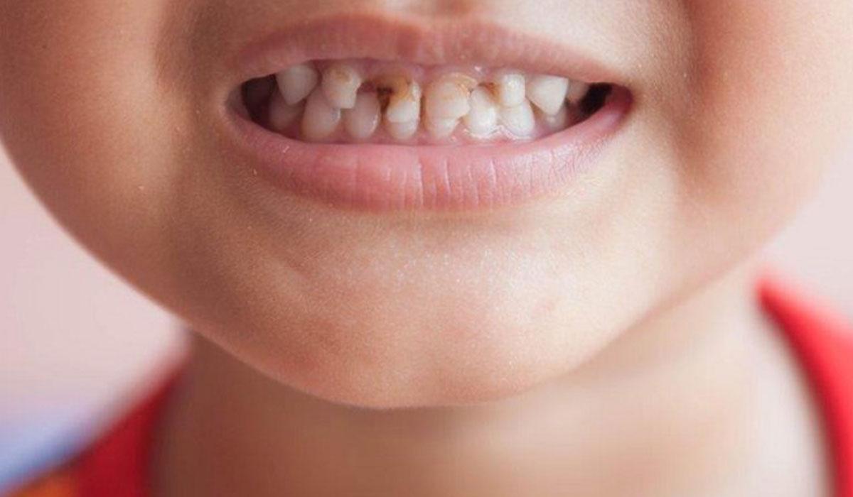 صورة تسوس الاسنان للاطفال , اسباب اصابة الاطفال بتسوس الاسنان