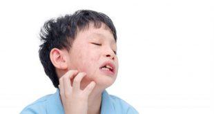 صور اعراض حساسية اللبن , زياده الكالسيوم