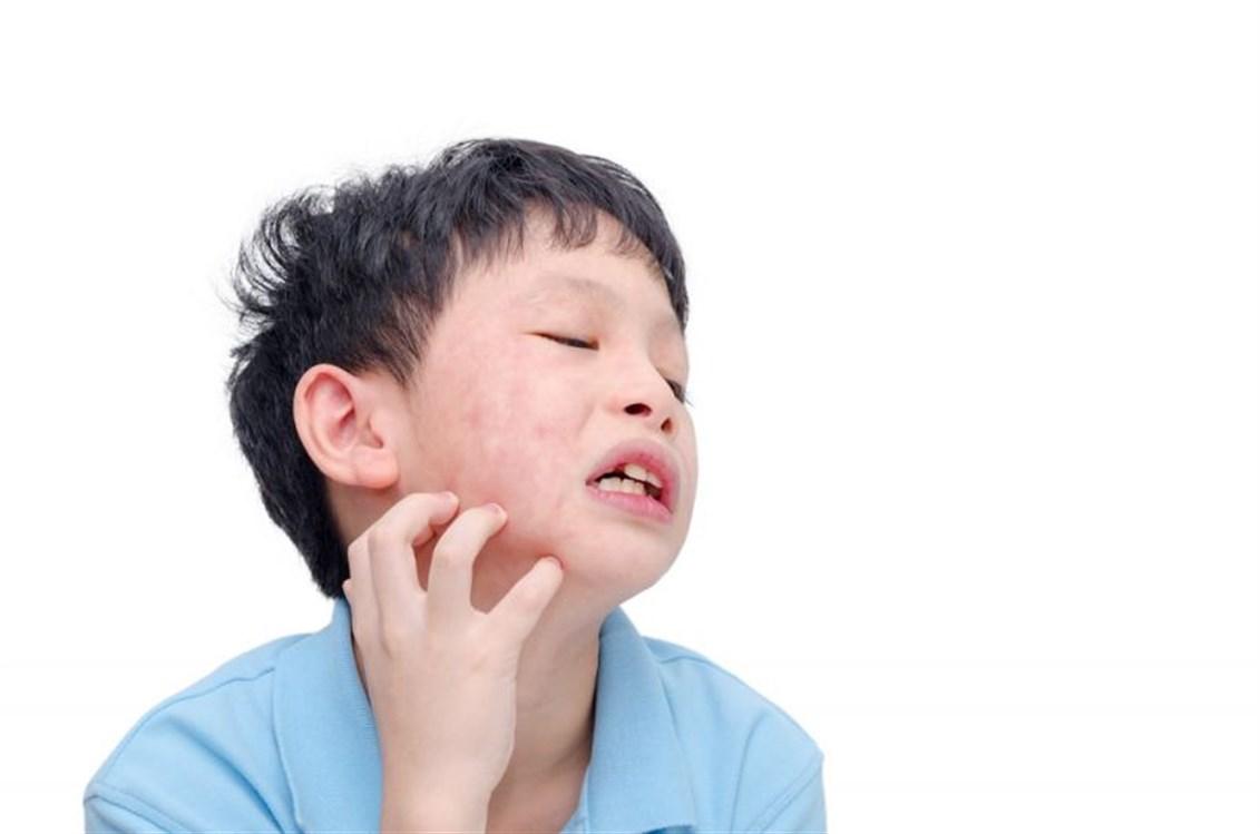 صورة اعراض حساسية اللبن , زياده الكالسيوم