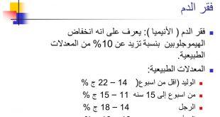 صورة نسبة فقر الدم الطبيعي , فقر الدم والمعدل الطبيعى له