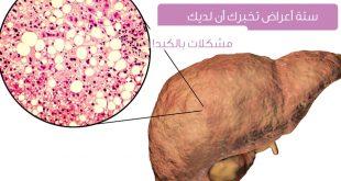 صور اعراض تعب الكبد , علامات توضح تعب الكبد