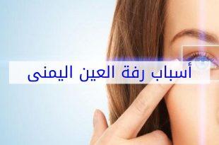 صورة اسباب رف العين اليمنى , علاج رفة العين