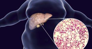 صورة اضرار دهون الكبد , علاج و كوارث دهون الكبد