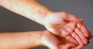 صورة اسباب حساسية الجلد , علاج حكة الجلد المزعجة