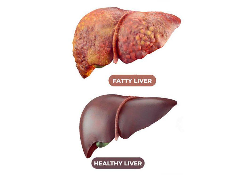 صورة علاج الكبد الدهني , القضاء على دهون الكبد المميته
