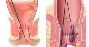 صورة علاج البواسير الداخلية , طرق بسيطة لعلاج البواسيرالداخلية