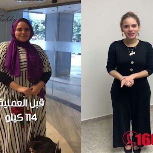 صورة عملية التكميم بالصور , صور لعمليات تكميم للمعده للحصول علي الوزن المثالي