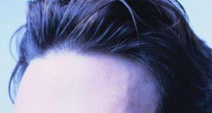 صورة بخاخ هير جين للشعر , من افضل طرق علاج الشعر