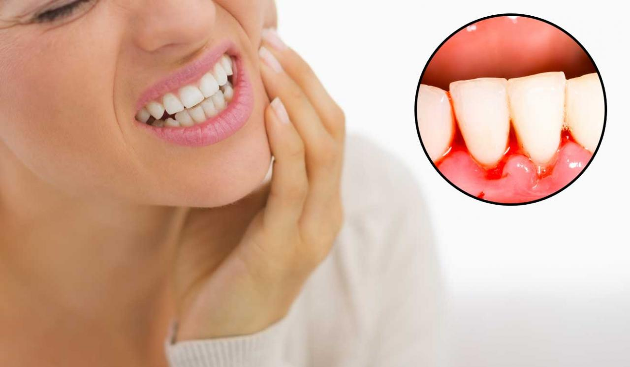 صورة علاج التهاب اللثة والاسنان بالاعشاب , ازاي تعالج اسنانك في البيت