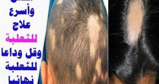 صورة علاج الثعلبة في الشعر , تخلص من الثعلبة نهائيا