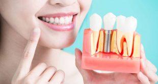 صورة طريقة تركيب الاسنان , ركب اسنانك بكل سهولة